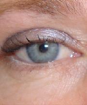 Resultaten na de ooglidcorrectie van een vrouw van 45 jaar