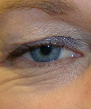 Vrouw, 45 jaar voor de ooglidcorrectie