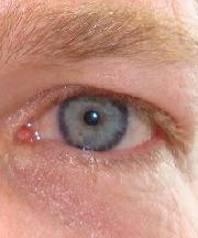 Man, 39 jaar voor de ooglidcorrectie