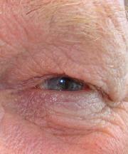Man, 70 jaar voor ooglidcorrectie