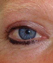 Resultaten na de ooglidcorrectie van een vrouw van 53 jaar