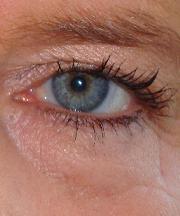Vrouw, 49 jaar voor de ooglidcorrectie