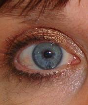 Resultaat na de ooglidcorrectie