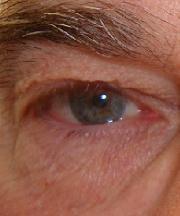 man, 63 jaar voor ooglidcorrectie