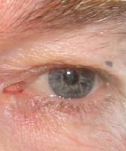 Man, 62 jaar voor de ooglidcorrectie
