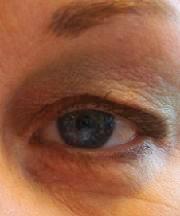 Vrouw, 41 jaar voor ooglidcorrectie