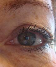 Vrouw, 53 jaar voor ooglidcorrectie