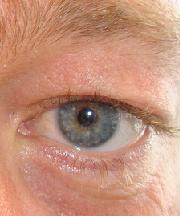 Man, 36 jaar voor ooglidcorrectie