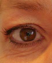 Vrouw, 46 jaar voor de ooglift