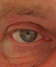 Resultaten na de ooglidcorrectie van een man van 59 jaar