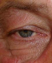 Man, 59 jaar voor de ooglidcorrectie