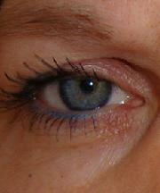Vrouw, 42 jaar voor de ooglidcorrectie