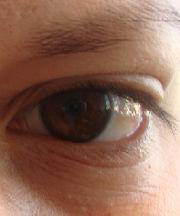 Vrouw, 31 jaar voor ooglidcorrectie