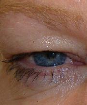 Vrouw, 48 jaar voor de ooglift