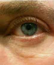 Resultaten na de ooglidcorrectie van een vrouw van 43 jaar