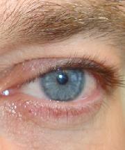Vrouw, 43 jaar voor de ooglidcorrectie