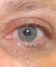 Resultaten na de ooglidcorrectie van een vrouw van 52 jaar