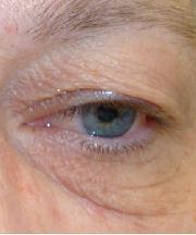 Vrouw, 52 jaar voor de ooglidcorrectie