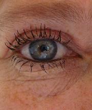 Resultaten na de ooglidcorrectie van een vrouw van 44 jaar