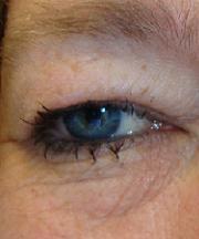 Vrouw, 44 jaar voor de ooglidcorrectie