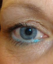 Vrouw, 39 jaar voor de ooglidcorrectie