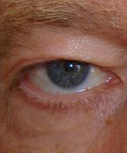 Man, 60 jaar voor de ooglidcorrectie