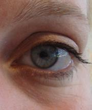 Resultaten na de ooglidcorrectie