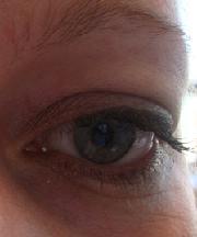 Vrouw, 28 jaar voor ooglidcorrectie