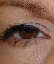 Vrouw, 43 jaar voor de ooglidcorrrectie