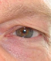 Man, 51 jaar voor de ooglift