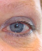 Resultaten na de ooglidcorrectie van een vrouw van 49 jaar