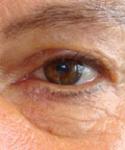 Vrouw, 53 jaar voor de ooglift
