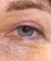 Resulataten na de ooglidcorrectie