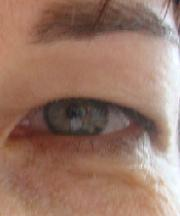 Vrouw, 42 jaar voor ooglidcorrectie
