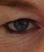 Vrouw, 46 jaar voor de ooglidcorrectie
