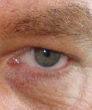 Man, 50 jaar voor de ooglidcorrectie