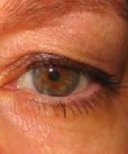 Vrouw, 46 jaar voor ooglidcorrectie