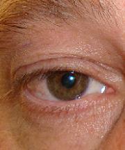 Man, 43 jaar voor ooglidcorrectie