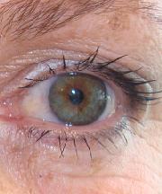 Vrouw, 51 jaar voor ooglidcorrectie