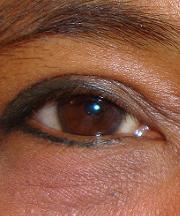 Resulaten na de ooglidcorrectie