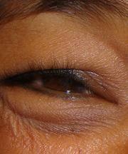 Vrouw, 47 jaar voor de ooglift