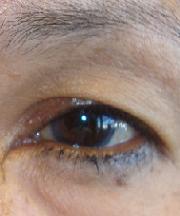 Vrouw, 57 jaar voor ooglidcorrectie