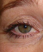 Vrouw, 37 jaar voor de ooglidcorrectie