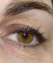 Vrouw, 40 jaar voor ooglift