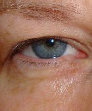 Vrouw, 42 jaar voor ooglift