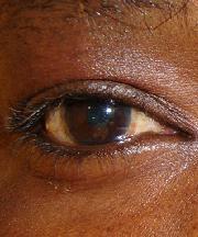 Vrouw, 35 jaar voor ooglidcorrectie