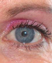 Resultaten na de ooglidcorrectie van een vrouw van 48 jaar