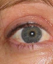 Resultaten na de ooglidcorrectie van een vrouw van 40 jaar