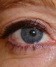Vrouw, 40 jaar voor de ooglidcorrectie