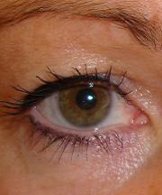 Vrouw, 41 jaar voor de ooglidccorrectie